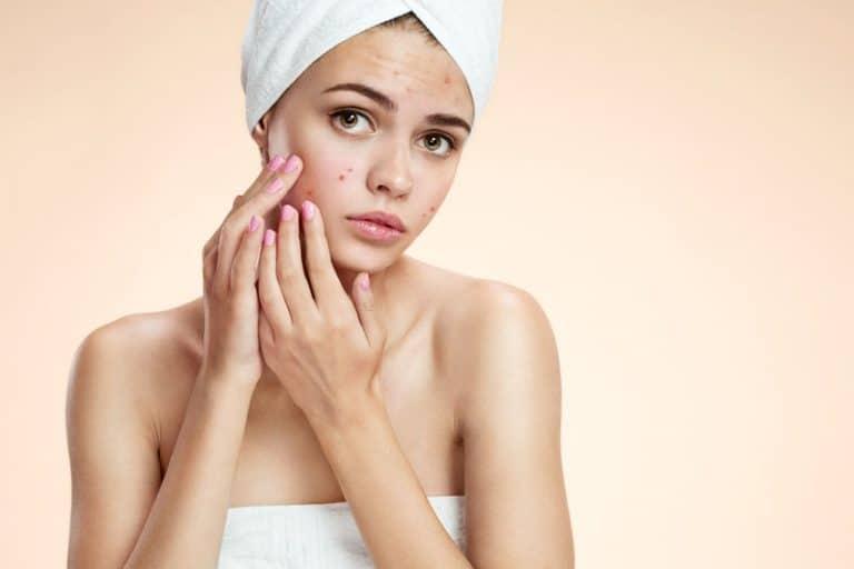 tratamiento-de-acne-3-Legoshyn-38215096_s-768x512