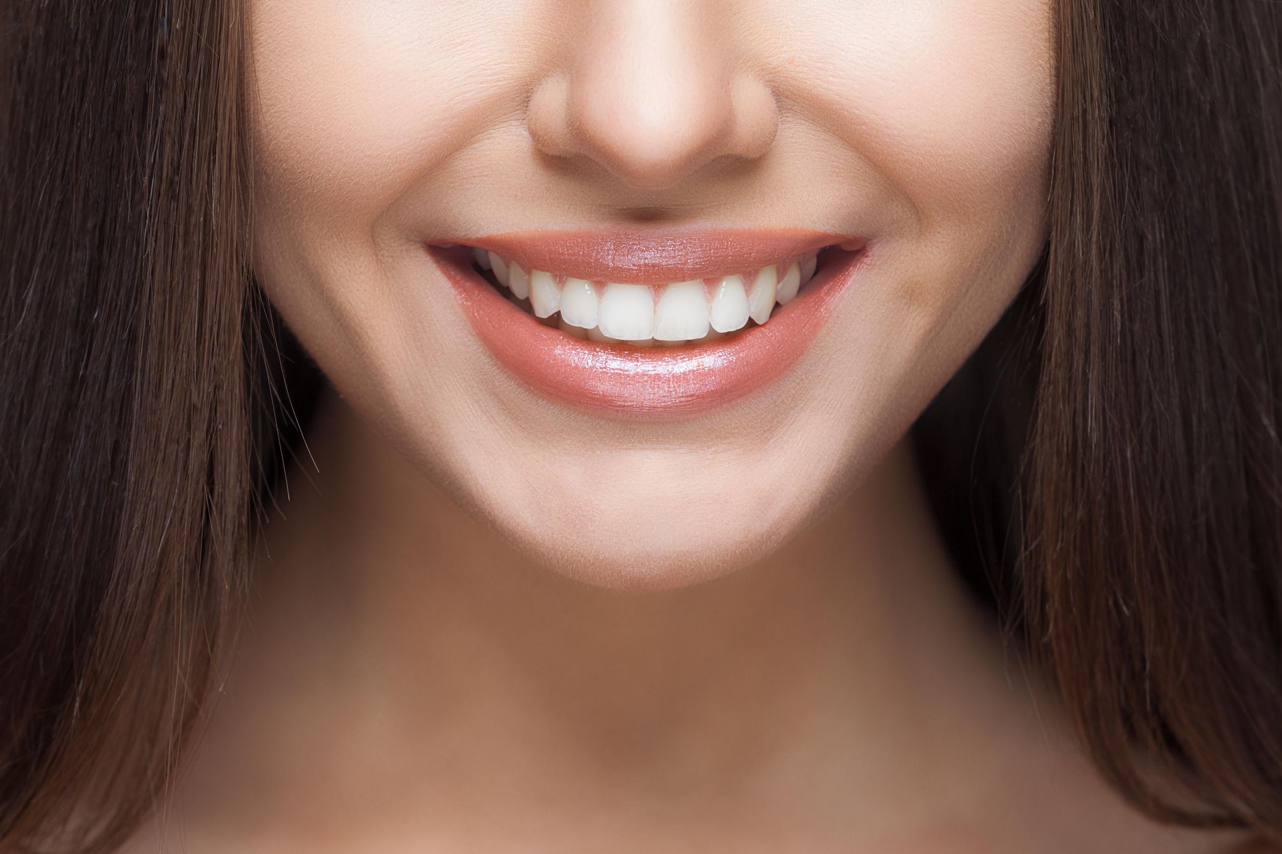 blanqueadores-de-dientes